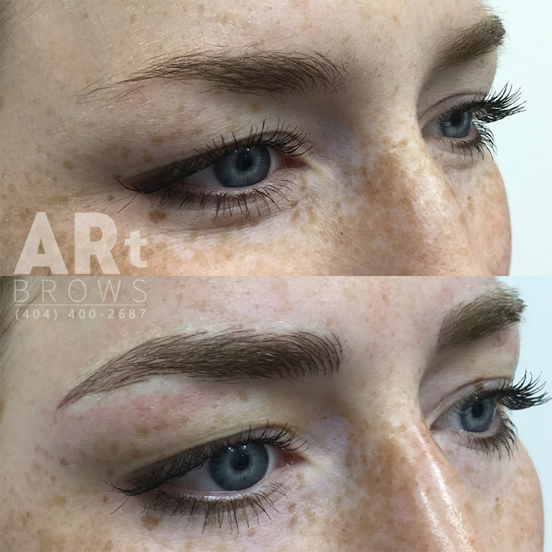eyebrow correction before and after