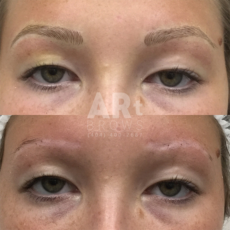 eyebrow embroidery before and after